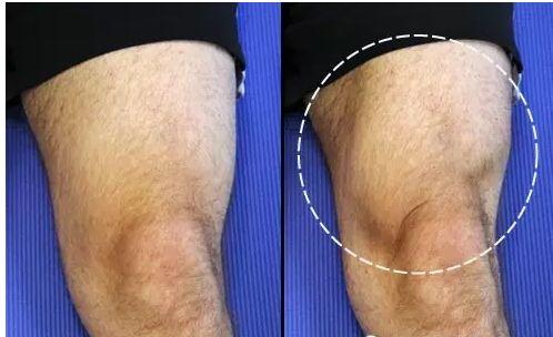 关于膝盖疼痛,你了解多少?