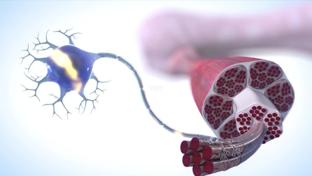 肌萎缩侧索硬化症(ALS)和脊髓性肌萎缩症(SMA)的鉴别诊断